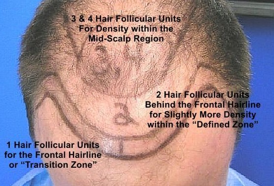 Best Frontal Hair Transplant Doctor