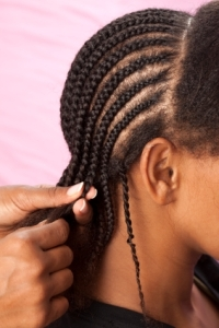 Tight Hair Styles like Cornrows can lead to traction alopecia & permanent hair loss