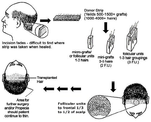 Hair Transplant Surgery 101 A Typical Procedure Start To Finish