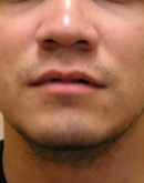 Before Beard Hair Transplant, Pair 1