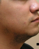 Before Beard Hair Transplant, Pair 2