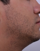 After Beard Hair Transplant, Pair 2