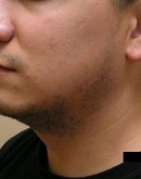 Before Beard Hair Transplant, Pair 3