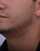 After Beard Hair Transplant, Pair 3