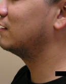 Before Beard Hair Transplant, Pair 4