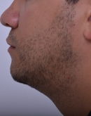 After Beard Hair Transplant, Pair 4
