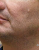 Before Beard Transplant, Pair 7