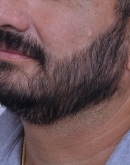 After Beard Transplant, Pair 7