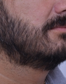 After Beard Transplant, Pair 4
