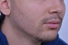 After Beard Hair Transplant