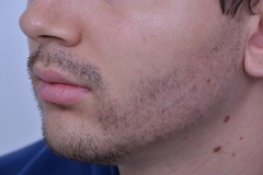 After Beard Hair Transplant photo