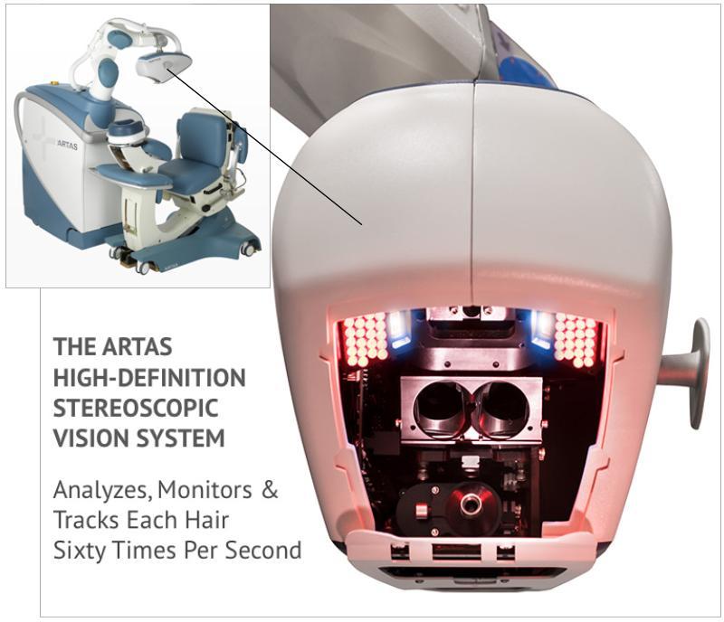 ARTAS-60-Times-Second