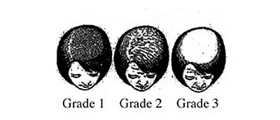 Classification of Female Hair Loss